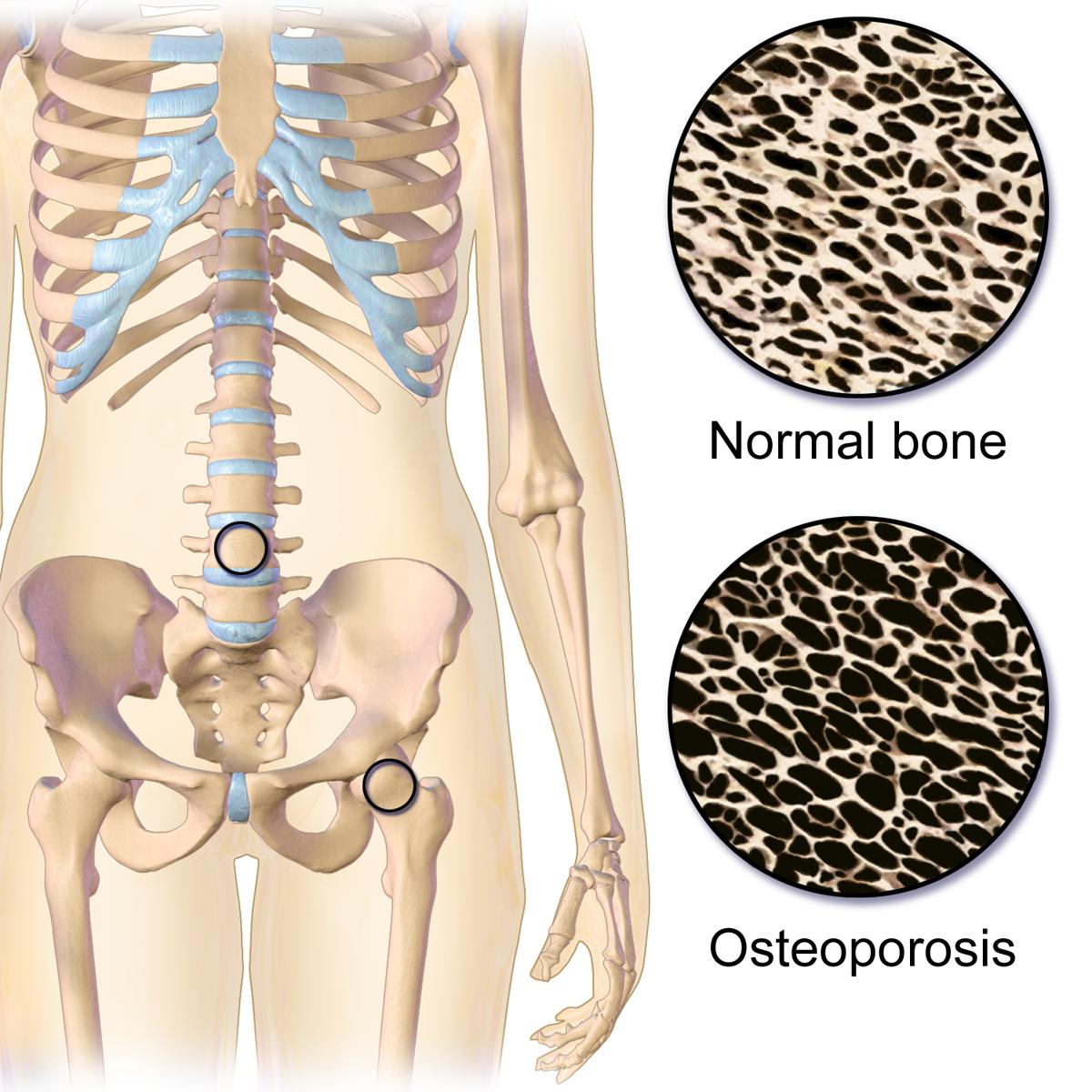 Resultado de imagen de osteoporosis