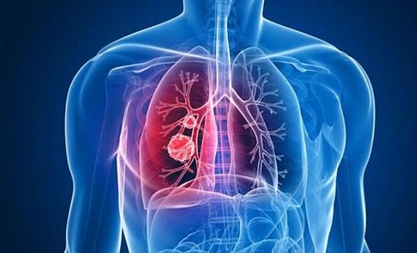 clinica-hipertension-pulmonar
